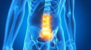 lumbalgia-aguda-fisioterapia-getafe-osteopatia-getafe-tratamiento-lumbalgia