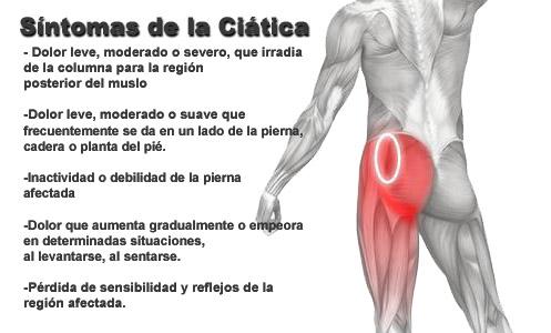 ciatica-1-jpg