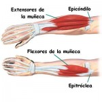 tendinitis de codo, fisioterapia