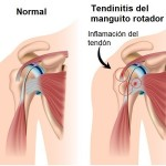 tendinitis manguito rotador, tendinitis de hombro