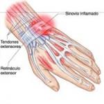 tendinitis mano y muñeca, fisioterapia