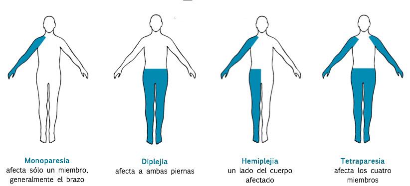 paralisis infantil, hemiparesia, hemiplejia, espasticidad