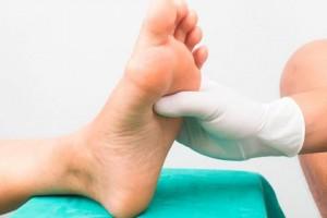 podologia, fisioterapia playamar, quiropodia pie diabetico
