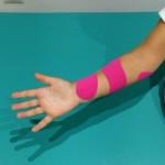 venmdaje neuromuscular, fisioterapia pediatrica